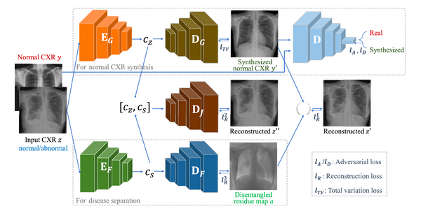 [Paper Review] A disentangled generative model for disease decomposition in chest X-rays via normal image synthesis_1편